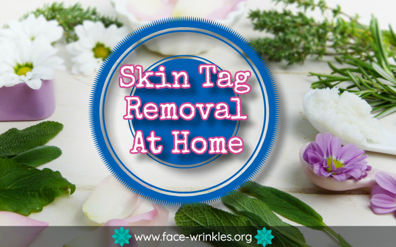 Tips On Skin Tag Removal At Home