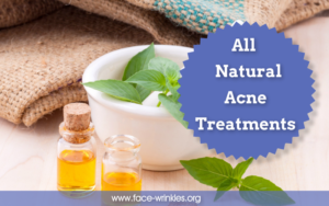All Natural Acne Treatments To Improve The Look Of Your Skin