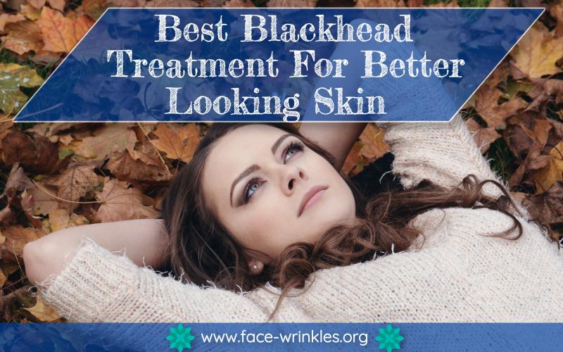 best blackhead treatment